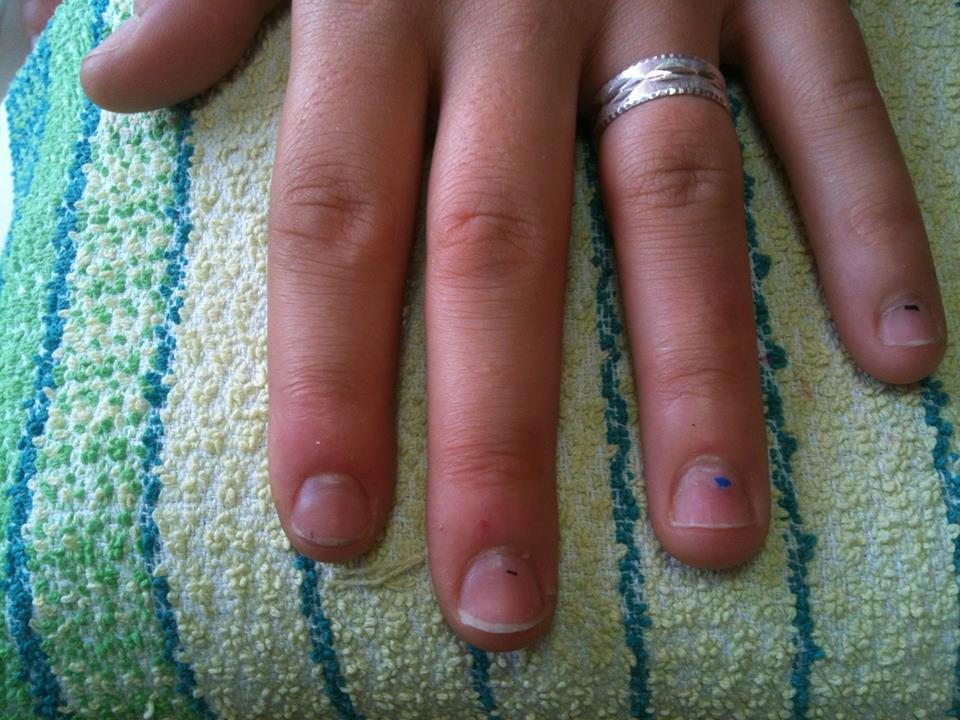 204c7245be73 Ονυχοφαγία (φαγωμένα νύχια) Αίτια Και Τρόποι Αντιμετώπισης